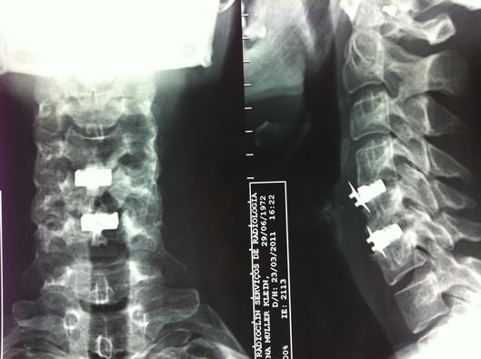 hernia-dedisco-cervical